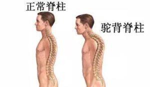 Normal back